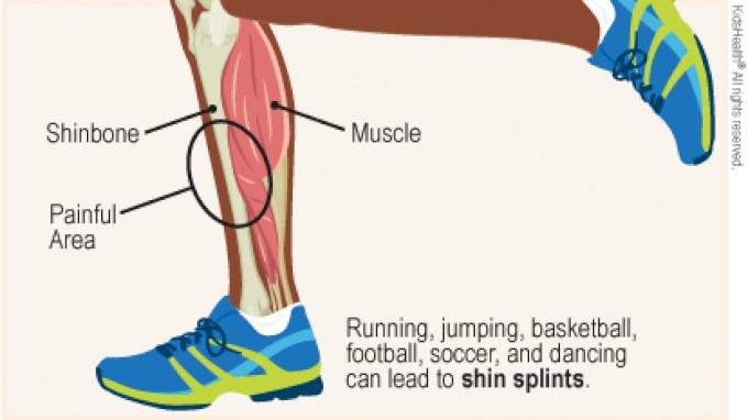 Shin splints in running betting back and lay meaning in betting what does ats
